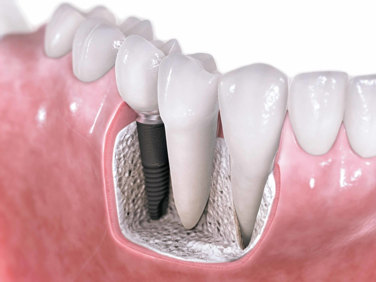 Dental_Implants.jpg